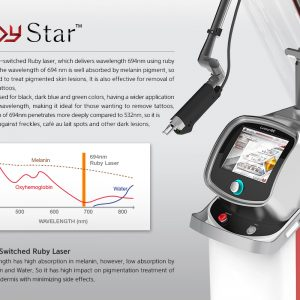 Ruby Star Q Switched Ruby Laser System